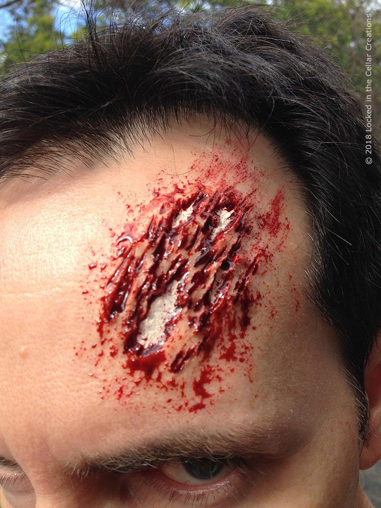 Scraped open forehead injury, showing the bone. SFX make-up using scar wax, Reel Blood and pale cream make-up.